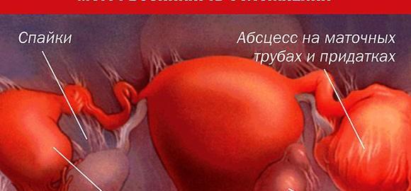 imagesantibiotik-pri-vospalenii-pridatkov-i-jaichnikov-thumb.jpg
