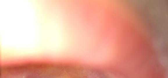 imageskrasnoe-gorlo-s-krasnymi-progilkami-thumb.jpg
