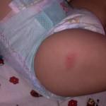 У ребенка после прививки АКДС, появилась шишка на ножке