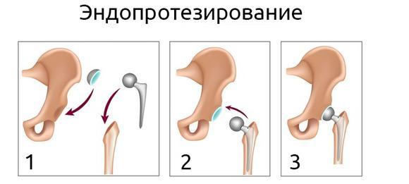 imagesobezbolivajuschie-pri-perelome-shejki-bedra-thumb.jpg