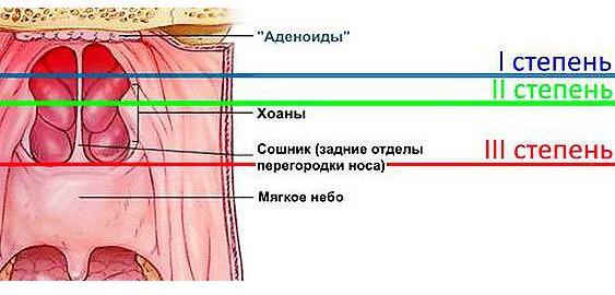 imagesrastvor-protargola-kapli-v-nos-instruktsija-thumb.jpg
