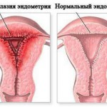 Эндометрий при беременности