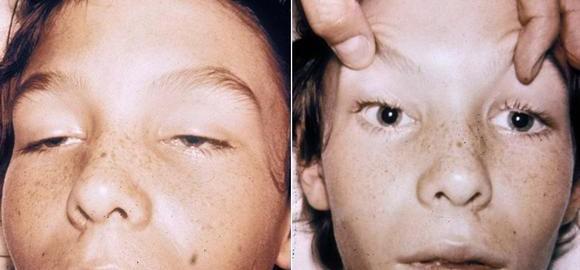 imagessimptomy-botulizma-u-cheloveka-thumb.jpg