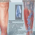 Лечение ретикулярного варикоза