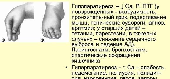 imageszadergka-fizicheskogo-razvitija-kod-po-mkb-10-thumb.jpg