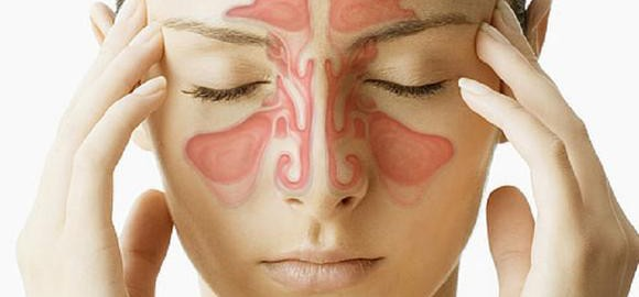 imagesrinosinusit-simptomy-i-lechenie-u-vzroslyh-thumb.jpg