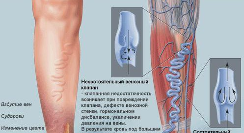 imagesvarikoz-nignih-konechnostej-simptomy-foto-i-lechenie-thumb.jpg